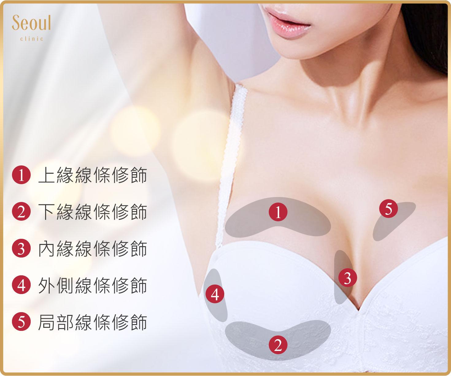 首爾醫美隆乳手術_補脂介紹