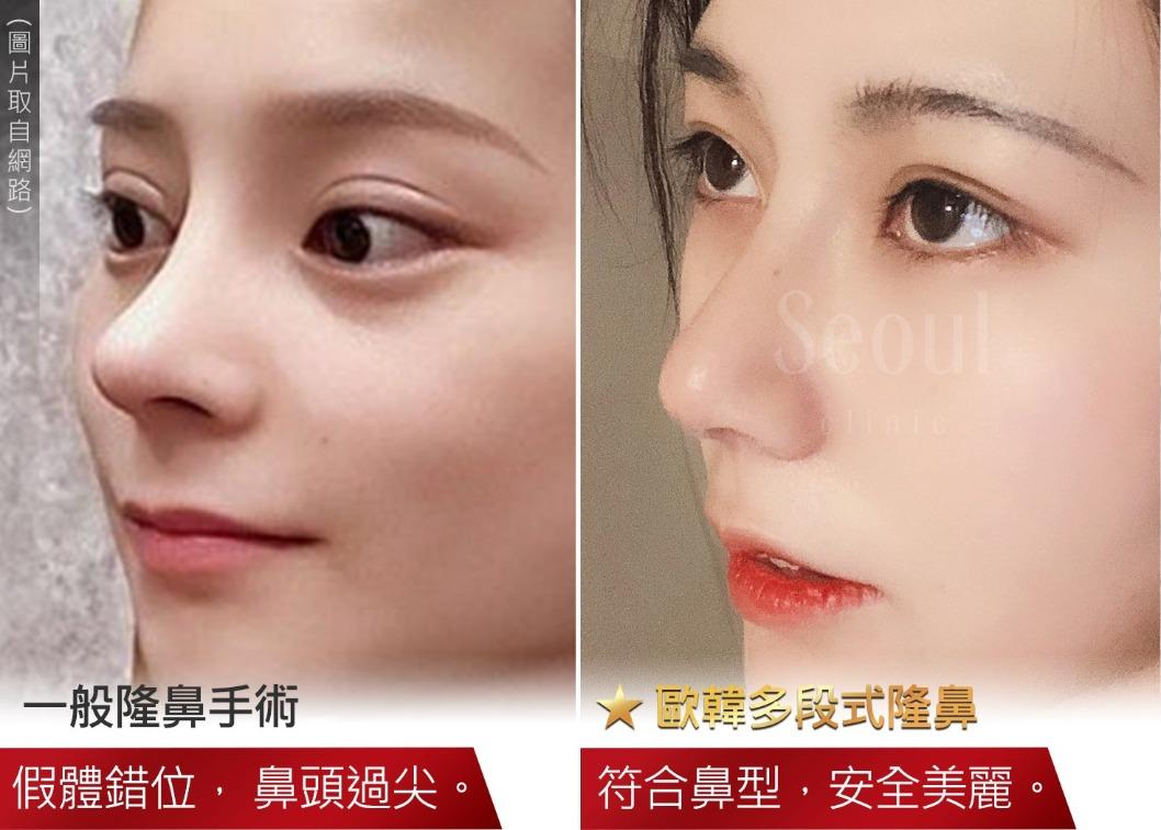 首爾醫美診所_隆鼻手術_植入物材質